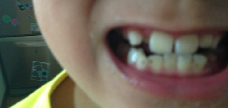 ヴァイアナさんが教えてくれました 歯の話です